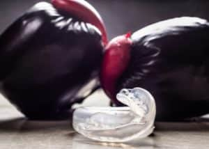 prevention do mouthguards protect teeth baulkham hills